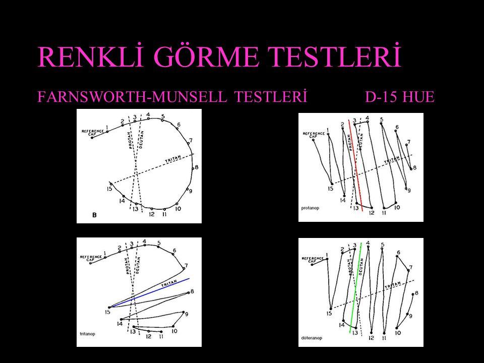 RENKLİ GÖRME TESTLERİ FARNSWORTH-MUNSELL TESTLERİ D-15 HUE