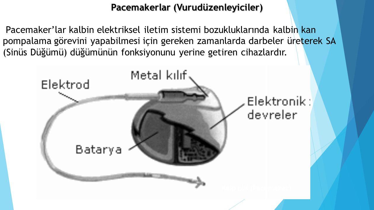 Pacemakerlar (Vurudüzenleyiciler) Pacemaker'lar kalbin elektriksel iletim sistemi bozukluklarında kalbin kan pompalama görevini yapabilmesi için gerek