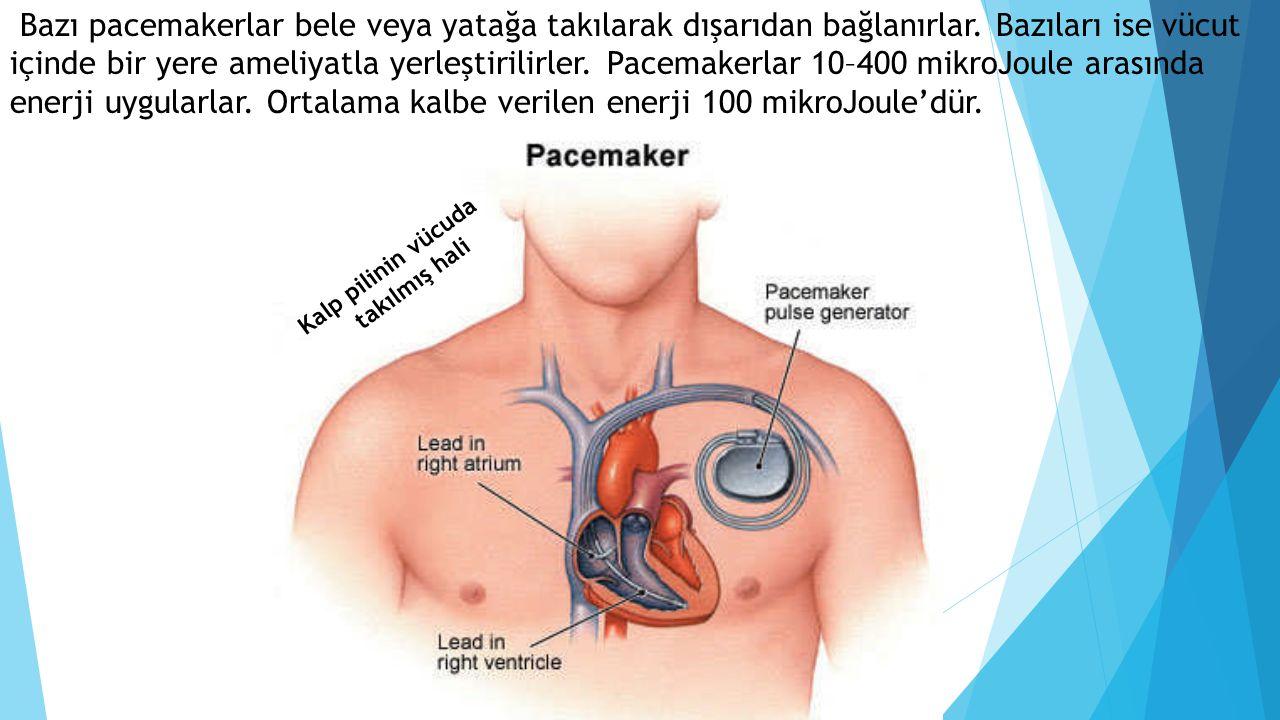 Bazı pacemakerlar bele veya yatağa takılarak dışarıdan bağlanırlar. Bazıları ise vücut içinde bir yere ameliyatla yerleştirilirler. Pacemakerlar 10–40