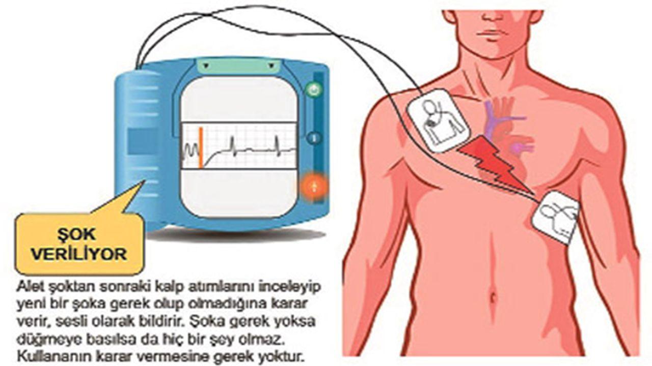 Defibrilatör Çeşitleri Genel olarak üçe ayrılırlar:  Pacemaker lar gibi kalbe yerleştirilen ve gerektiği anda (otomatik olarak karar vermelerini sağlayan algılayıcıları vardır) şok veren tip.