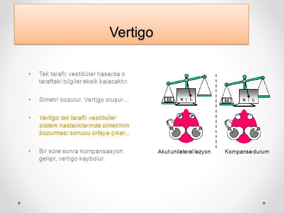 VertigoVertigo Tek taraflı vestibüler hasarda o taraftaki bilgiler eksik kalacaktır.
