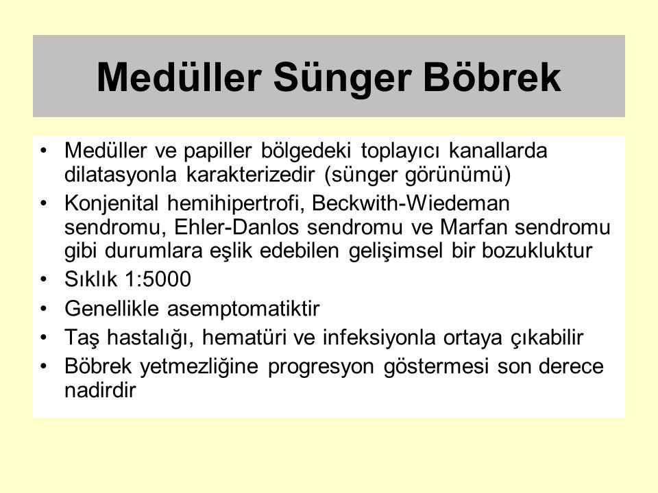 Medüller Sünger Böbrek Medüller ve papiller bölgedeki toplayıcı kanallarda dilatasyonla karakterizedir (sünger görünümü) Konjenital hemihipertrofi, Be