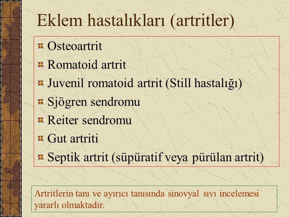 Eklem hastalıkları (artritler) Osteoartrit Romatoid artrit Juvenil romatoid artrit (Still hastalığı) Sjögren sendromu Reiter sendromu Gut artriti Sept