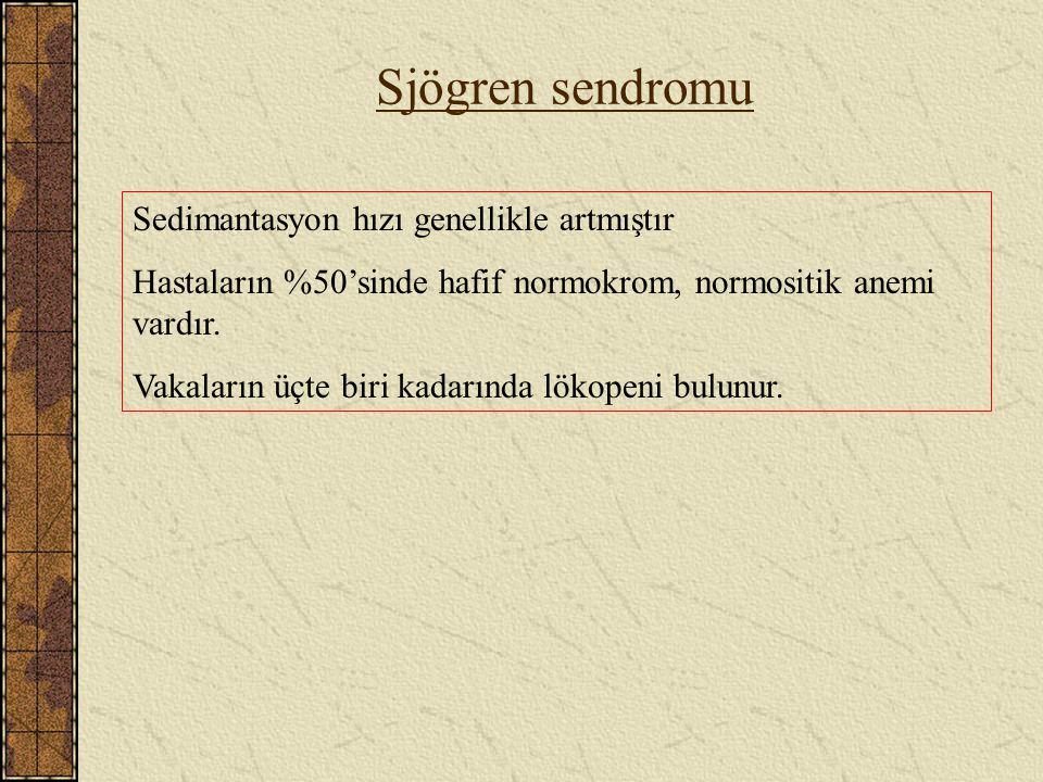 Sjögren sendromu Sedimantasyon hızı genellikle artmıştır Hastaların %50'sinde hafif normokrom, normositik anemi vardır. Vakaların üçte biri kadarında
