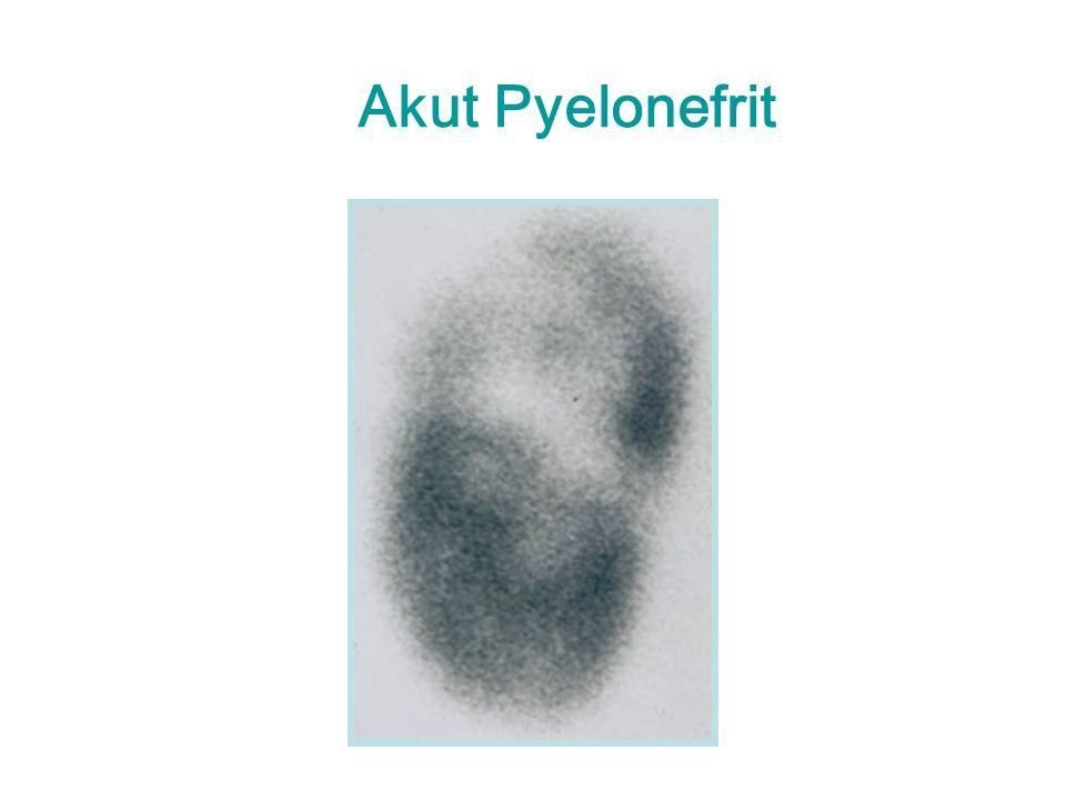 Akut Pyelonefrit