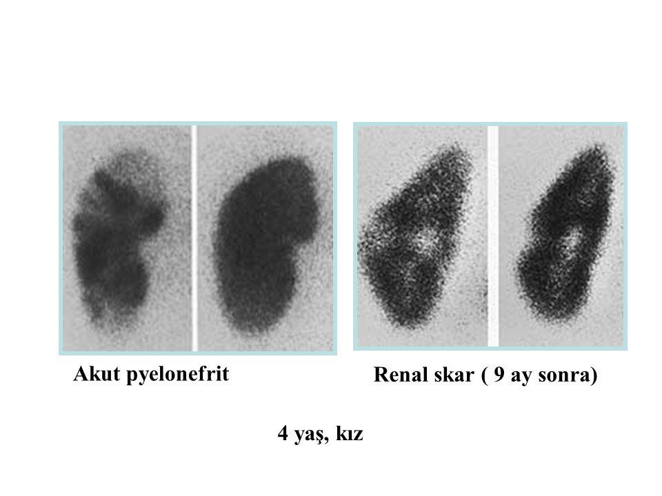 Akut pyelonefrit Renal skar ( 9 ay sonra) 4 yaş, kız