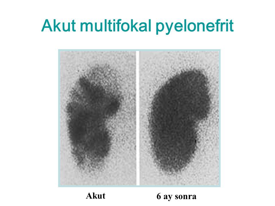 Akut multifokal pyelonefrit Akut 6 ay sonra