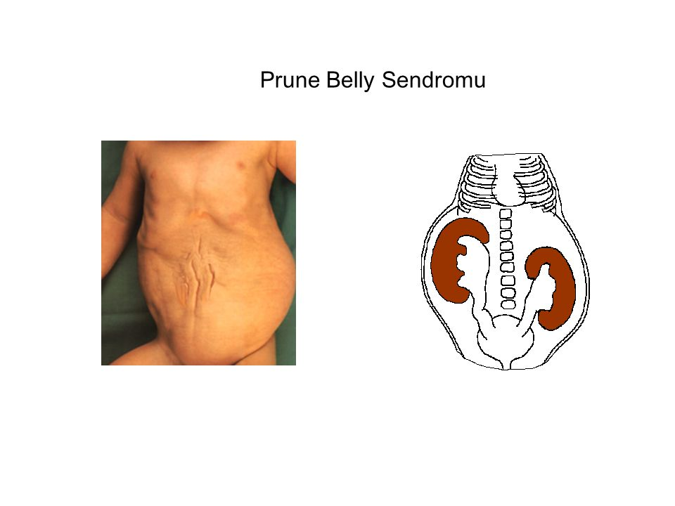 Prune Belly Sendromu