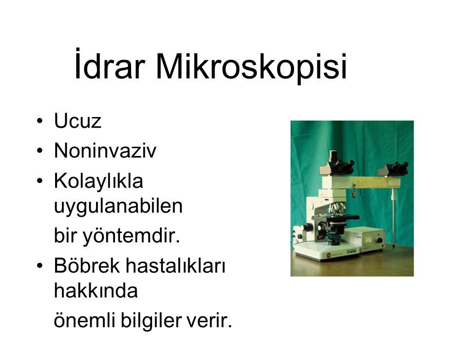 İdrar Mikroskopisi Ucuz Noninvaziv Kolaylıkla uygulanabilen bir yöntemdir. Böbrek hastalıkları hakkında önemli bilgiler verir.