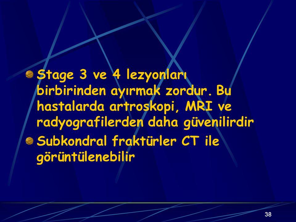 38 Stage 3 ve 4 lezyonları birbirinden ayırmak zordur. Bu hastalarda artroskopi, MRI ve radyografilerden daha güvenilirdir Subkondral fraktürler CT il