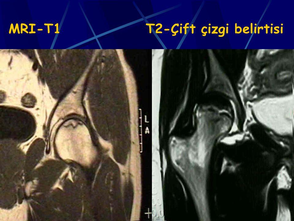 43 MRI-T1 T2-Çift çizgi belirtisi