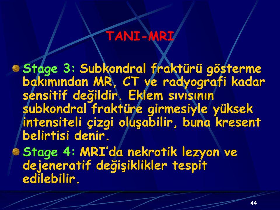 44 TANI-MRI Stage 3: Subkondral fraktürü gösterme bakımından MR, CT ve radyografi kadar sensitif değildir. Eklem sıvısının subkondral fraktüre girmesi