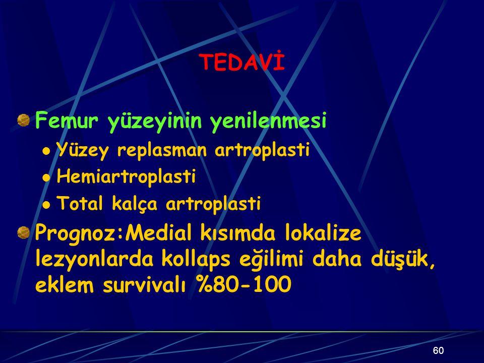 60 TEDAVİ Femur yüzeyinin yenilenmesi Yüzey replasman artroplasti Hemiartroplasti Total kalça artroplasti Prognoz:Medial kısımda lokalize lezyonlarda