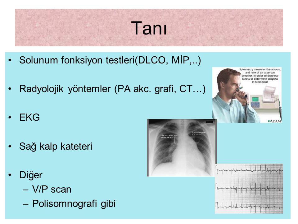Tanı Solunum fonksiyon testleri(DLCO, MİP,..) Radyolojik yöntemler (PA akc. grafi, CT…) EKG Sağ kalp kateteri Diğer –V/P scan –Polisomnografi gibi