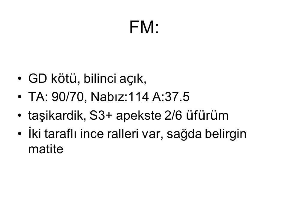 FM: GD k ö t ü, bilinci a ç ık, TA: 90/70, Nabız:114 A:37.5 taşikardik, S3+ apekste 2/6 ü f ü r ü m İki taraflı ince ralleri var, sağda belirgin matit