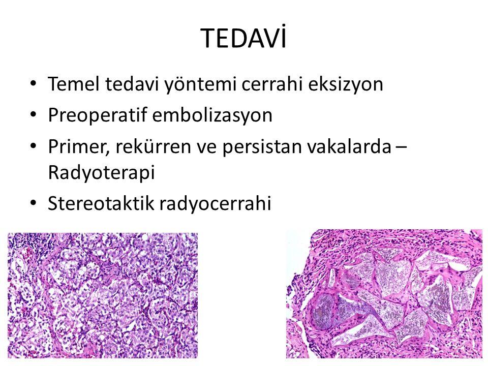 TEDAVİ Temel tedavi yöntemi cerrahi eksizyon Preoperatif embolizasyon Primer, rekürren ve persistan vakalarda – Radyoterapi Stereotaktik radyocerrahi