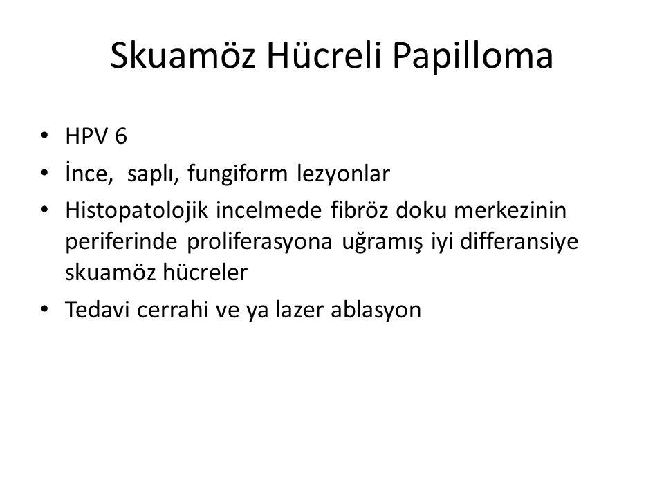 Skuamöz Hücreli Papilloma HPV 6 İnce, saplı, fungiform lezyonlar Histopatolojik incelmede fibröz doku merkezinin periferinde proliferasyona uğramış iy