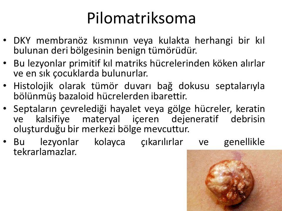 Pilomatriksoma DKY membranöz kısmının veya kulakta herhangi bir kıl bulunan deri bölgesinin benign tümörüdür. Bu lezyonlar primitif kıl matriks hücrel
