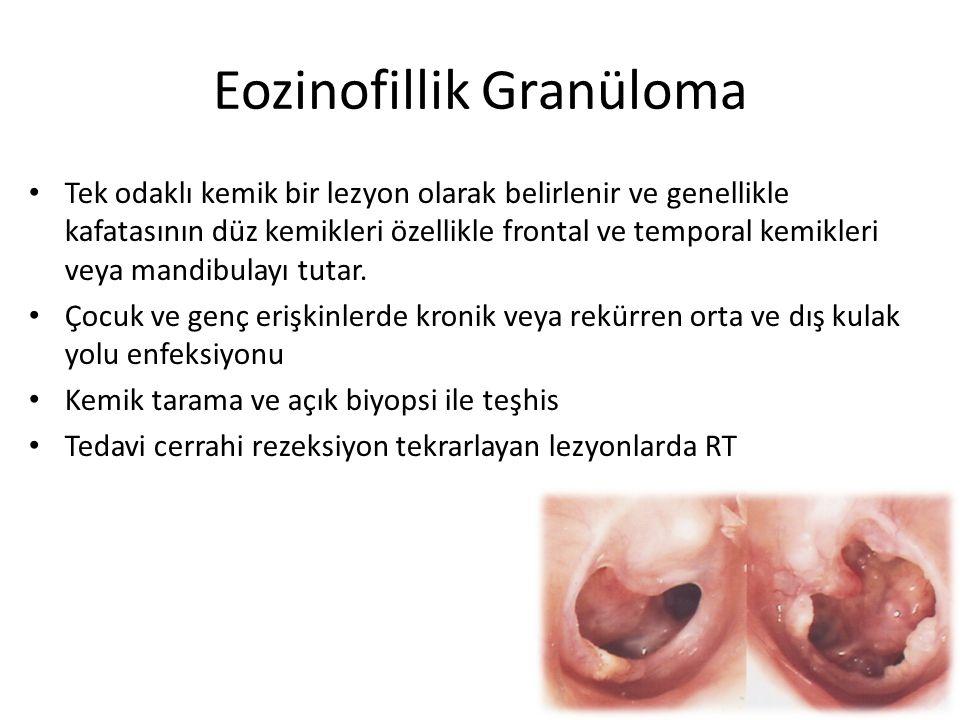 Eozinofillik Granüloma Tek odaklı kemik bir lezyon olarak belirlenir ve genellikle kafatasının düz kemikleri özellikle frontal ve temporal kemikleri v