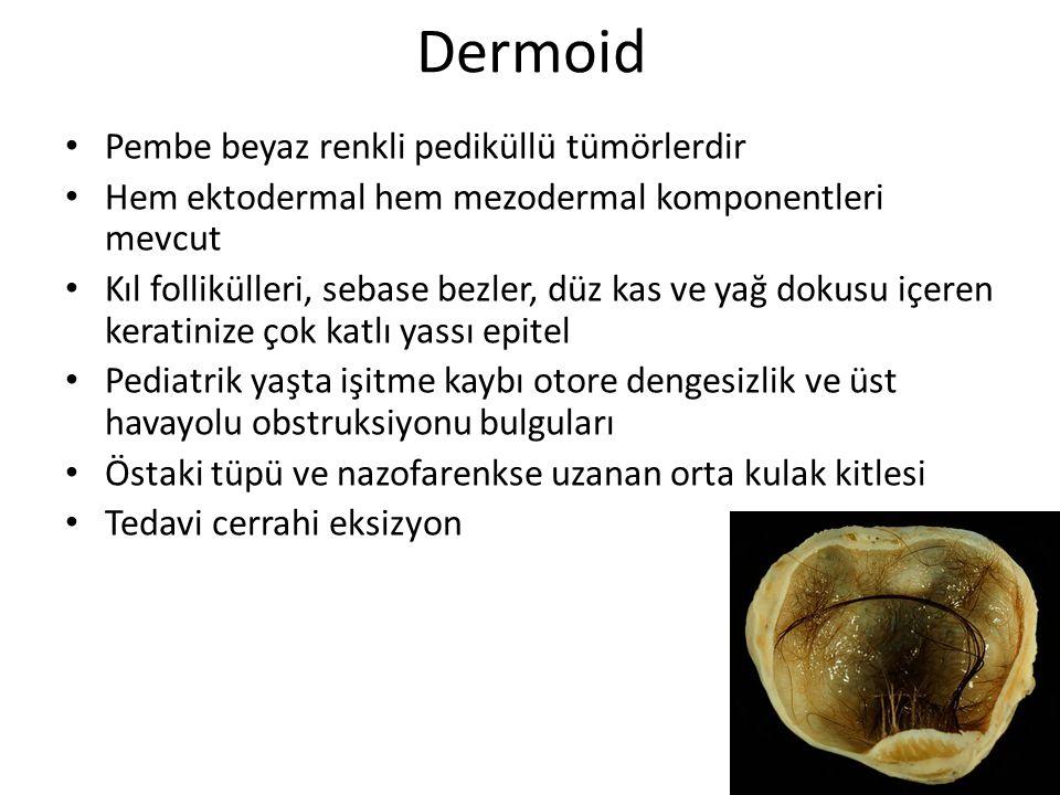 Dermoid Pembe beyaz renkli pediküllü tümörlerdir Hem ektodermal hem mezodermal komponentleri mevcut Kıl follikülleri, sebase bezler, düz kas ve yağ do