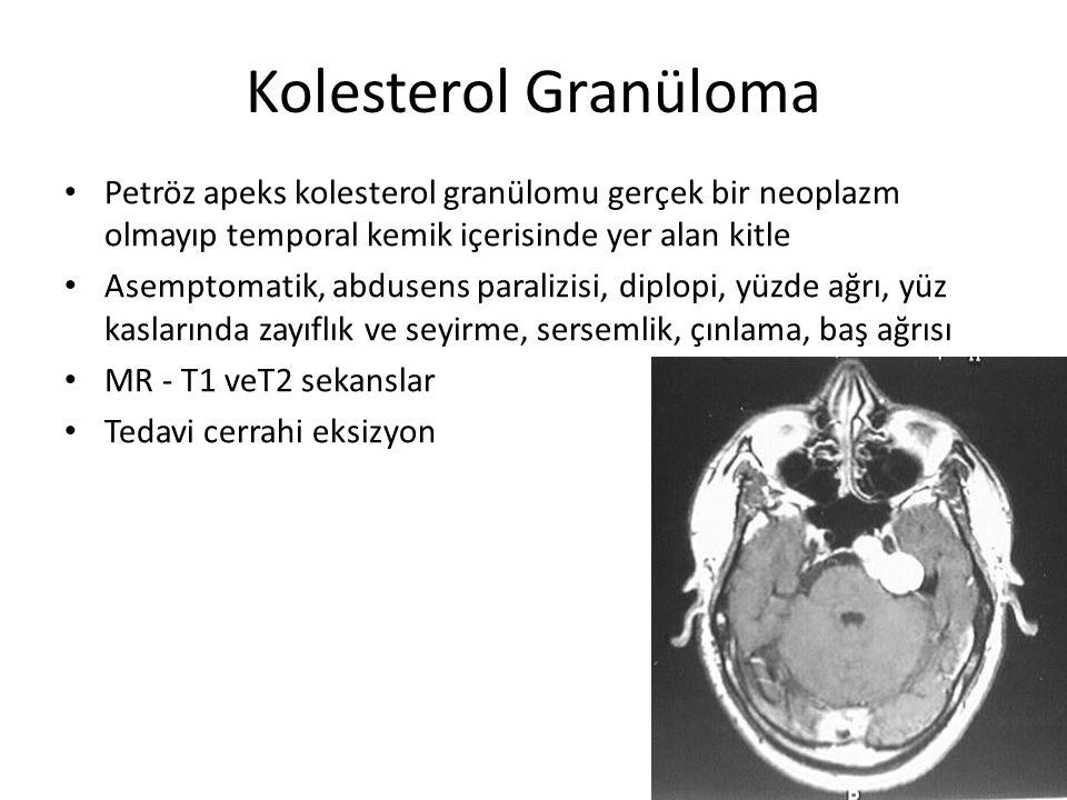 Kolesterol Granüloma Petröz apeks kolesterol granülomu gerçek bir neoplazm olmayıp temporal kemik içerisinde yer alan kitle Asemptomatik, abdusens par