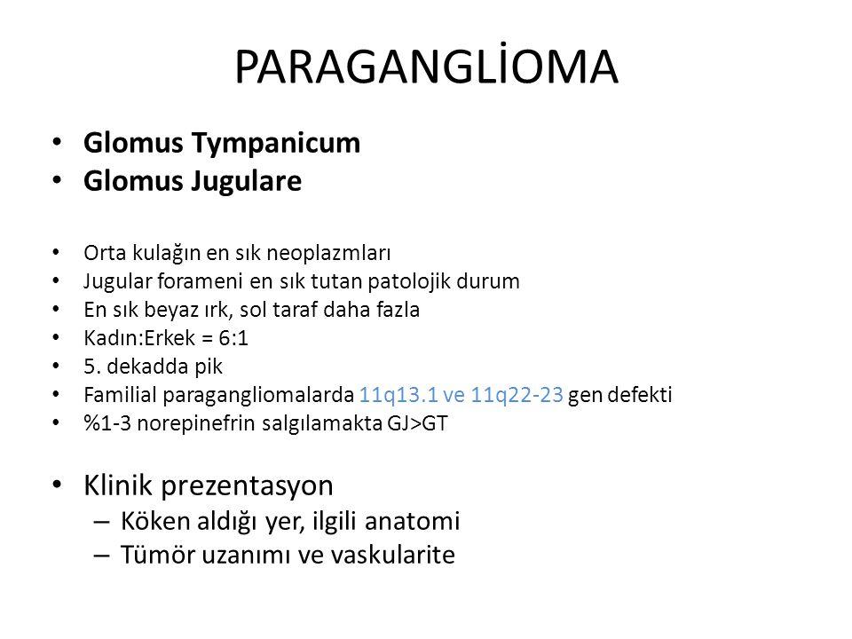 PARAGANGLİOMA Glomus Tympanicum Glomus Jugulare Orta kulağın en sık neoplazmları Jugular forameni en sık tutan patolojik durum En sık beyaz ırk, sol t