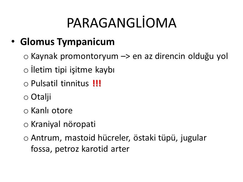PARAGANGLİOMA Glomus Tympanicum o Kaynak promontoryum –> en az direncin olduğu yol o İletim tipi işitme kaybı !!! o Pulsatil tinnitus !!! o Otalji o K
