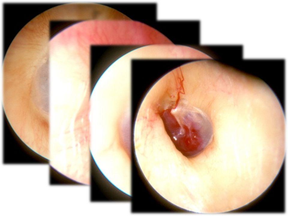 Teratoma Notokordun komşuluğunda menşe alan pluripotent kök hücrelerden doğan gerçek tümörlerdir.