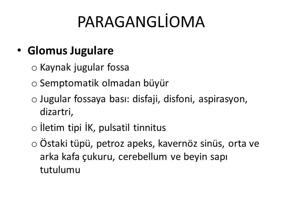 PARAGANGLİOMA Glomus Jugulare o Kaynak jugular fossa o Semptomatik olmadan büyür o Jugular fossaya bası: disfaji, disfoni, aspirasyon, dizartri, o İle
