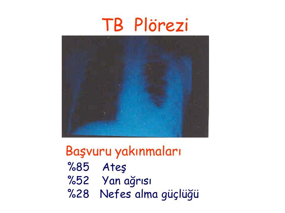 TB Plörezi Başvuru yakınmaları %85 Ateş %52 Yan ağrısı %28 Nefes alma güçlüğü