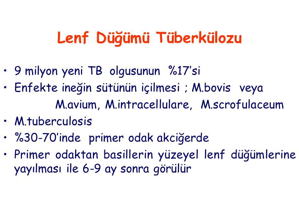 Lenf Düğümü Tüberkülozu 9 milyon yeni TB olgusunun %17'si Enfekte ineğin sütünün içilmesi ; M.bovis veya M.avium, M.intracellulare, M.scrofulaceum M.tuberculosis %30-70'inde primer odak akciğerde Primer odaktan basillerin yüzeyel lenf düğümlerine yayılması ile 6-9 ay sonra görülür