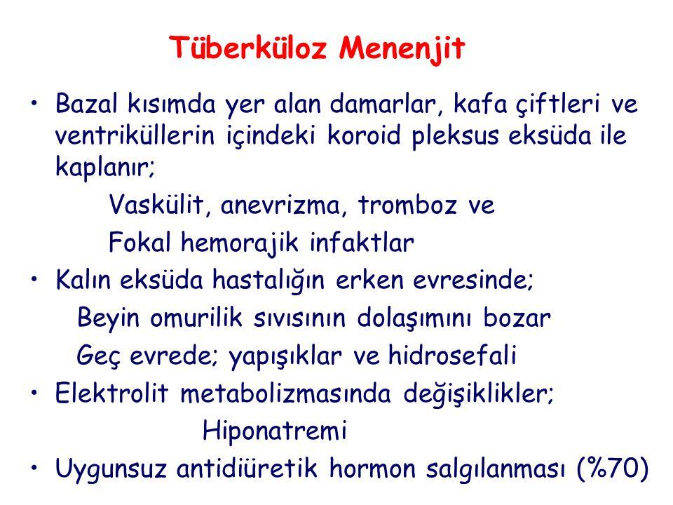 Tüberküloz Menenjit Bazal kısımda yer alan damarlar, kafa çiftleri ve ventriküllerin içindeki koroid pleksus eksüda ile kaplanır; Vaskülit, anevrizma, tromboz ve Fokal hemorajik infaktlar Kalın eksüda hastalığın erken evresinde; Beyin omurilik sıvısının dolaşımını bozar Geç evrede; yapışıklar ve hidrosefali Elektrolit metabolizmasında değişiklikler; Hiponatremi Uygunsuz antidiüretik hormon salgılanması (%70)