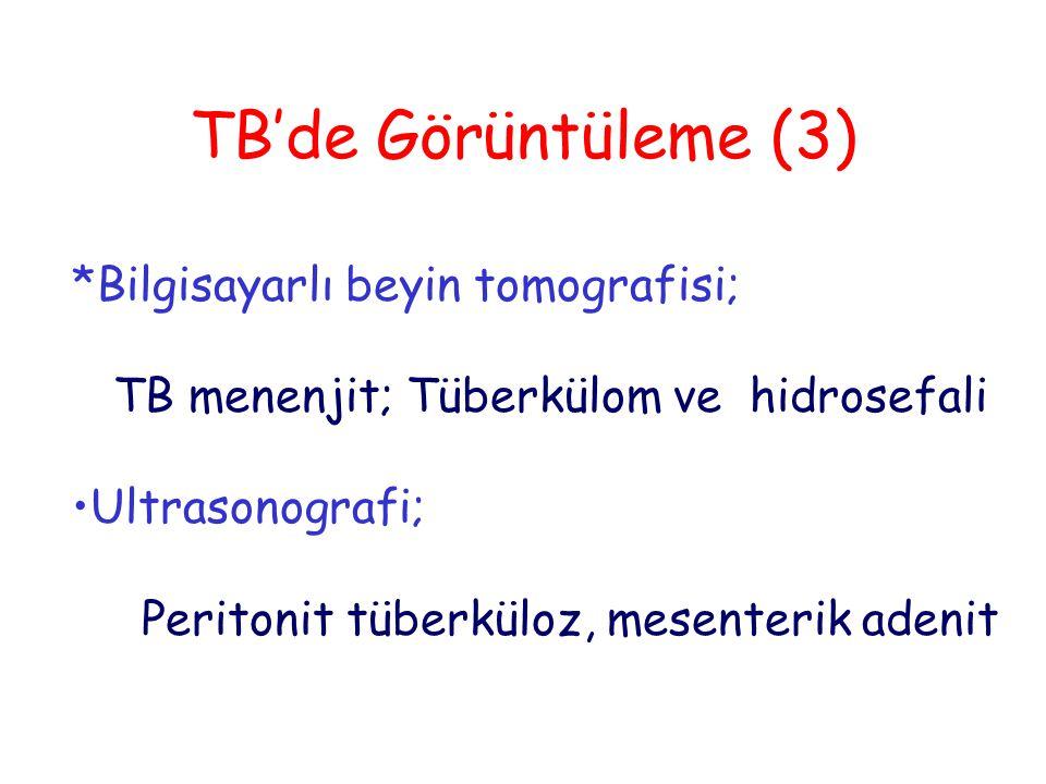 TB'de Görüntüleme (3) *Bilgisayarlı beyin tomografisi; TB menenjit; Tüberkülom ve hidrosefali Ultrasonografi; Peritonit tüberküloz, mesenterik adenit