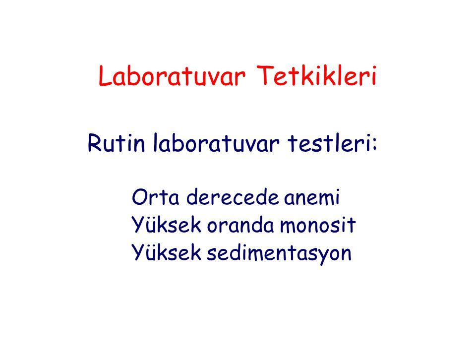 Laboratuvar Tetkikleri Rutin laboratuvar testleri: Orta derecede anemi Yüksek oranda monosit Yüksek sedimentasyon