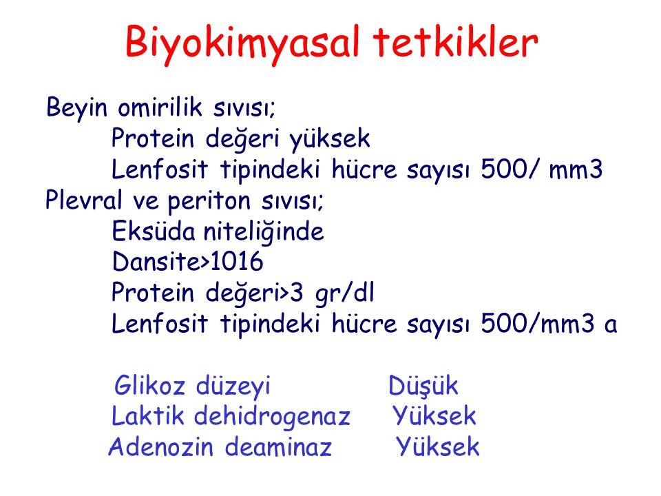 Biyokimyasal tetkikler Beyin omirilik sıvısı; Protein değeri yüksek Lenfosit tipindeki hücre sayısı 500/ mm3 Plevral ve periton sıvısı; Eksüda niteliğinde Dansite>1016 Protein değeri>3 gr/dl Lenfosit tipindeki hücre sayısı 500/mm3 a Glikoz düzeyi Düşük Laktik dehidrogenaz Yüksek Adenozin deaminaz Yüksek
