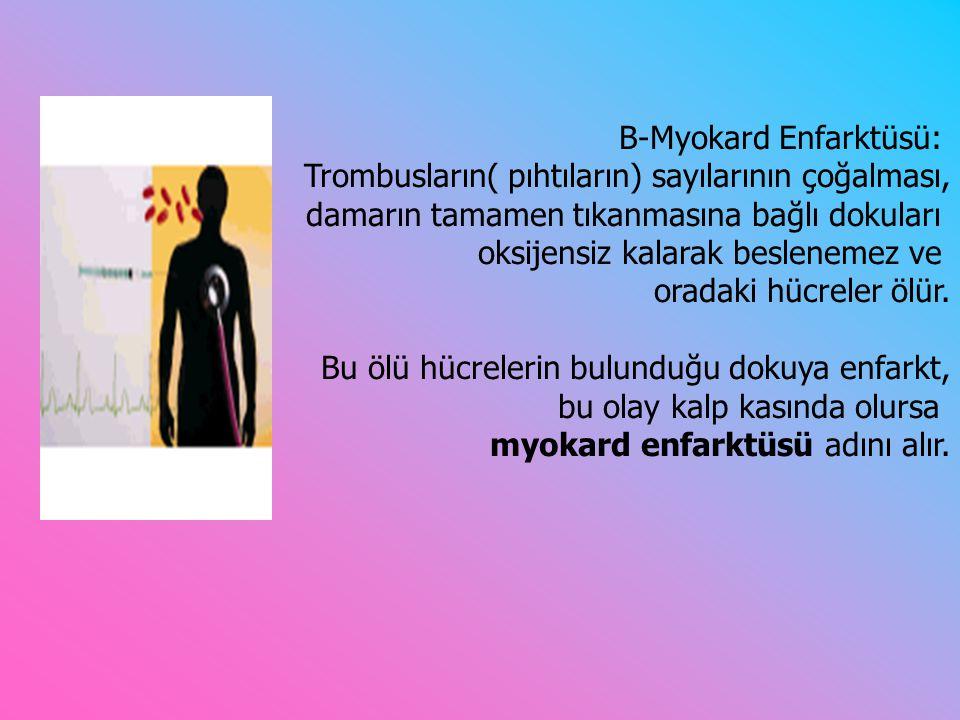 B-Myokard Enfarktüsü: Trombusların( pıhtıların) sayılarının çoğalması, damarın tamamen tıkanmasına bağlı dokuları oksijensiz kalarak beslenemez ve oradaki hücreler ölür.