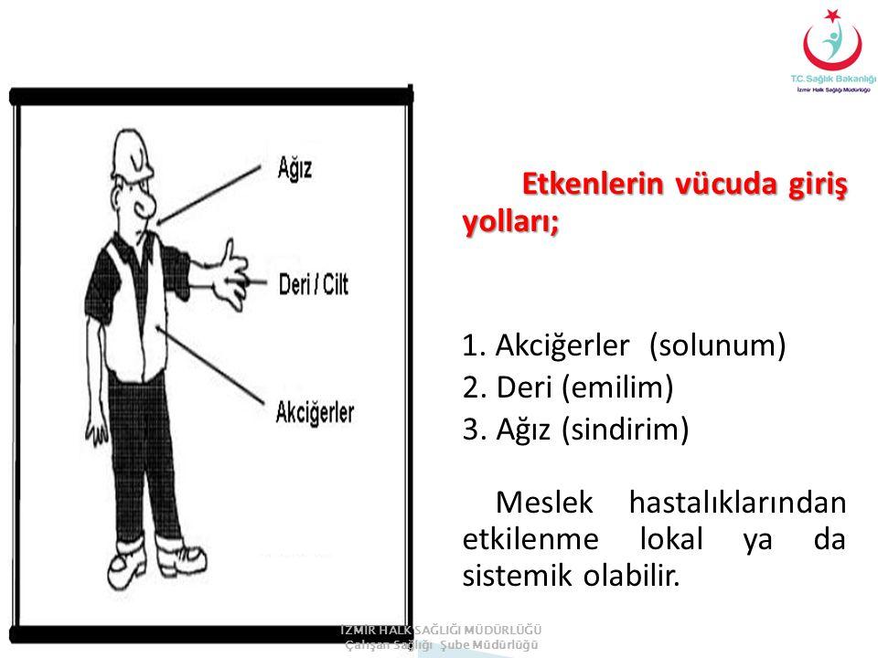 Etkenlerin vücuda giriş yolları; 1.Akciğerler (solunum) 2.