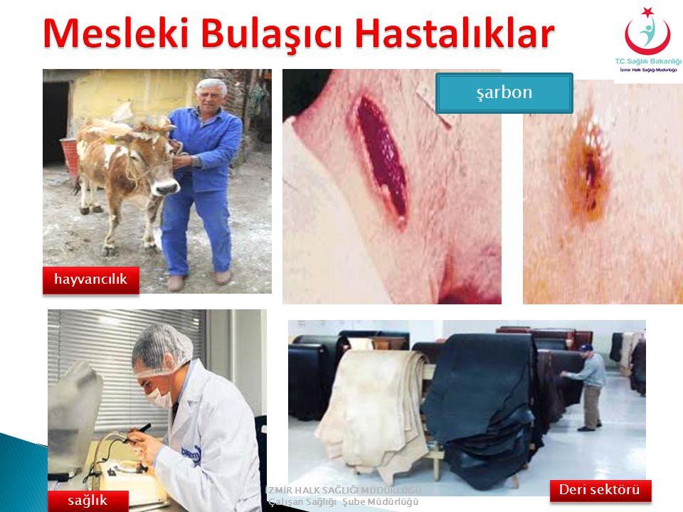şarbon hayvancılık sağlık Deri sektörü İZMİR HALK SAĞLIĞI MÜDÜRLÜĞÜ Çalışan Sağlığı Şube Müdürlüğü