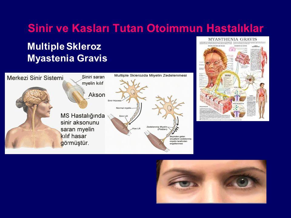 Sinir ve Kasları Tutan Otoimmun Hastalıklar Multiple Skleroz Myastenia Gravis