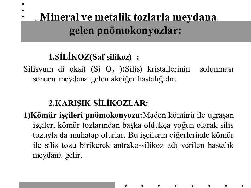Mineral ve metalik tozlarla meydana gelen pnömokonyozlar: 1.SİLİKOZ(Saf silikoz) : Silisyum di oksit (Si O 2 )(Silis) kristallerinin solunması sonucu meydana gelen akciğer hastalığıdır.