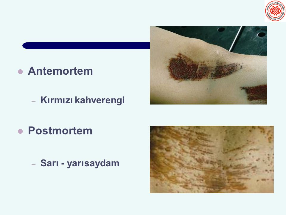 Antemortem – Kırmızı kahverengi Postmortem – Sarı - yarısaydam