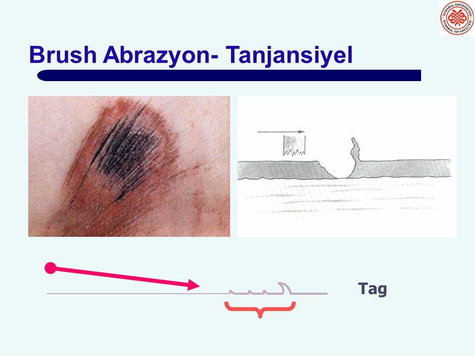 Brush Abrazyon- Tanjansiyel Tag