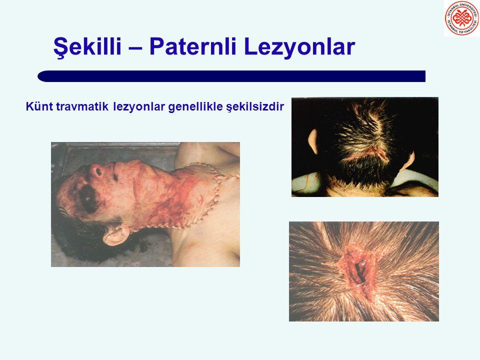 Şekilli – Paternli Lezyonlar Künt travmatik lezyonlar genellikle şekilsizdir