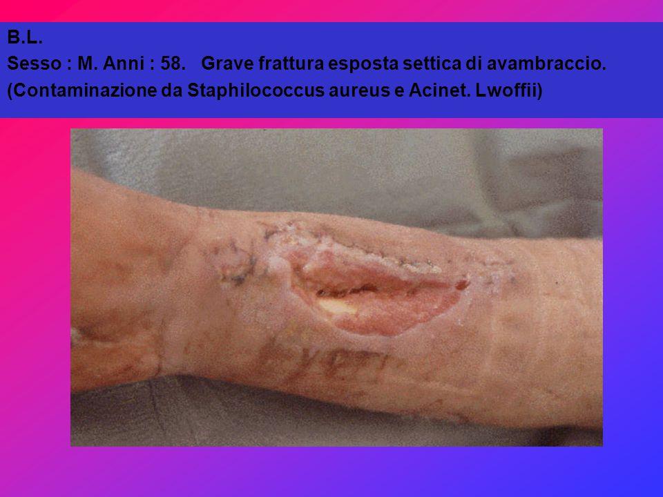 B.L.Sesso : M. Anni : 58. Grave frattura esposta settica di avambraccio.