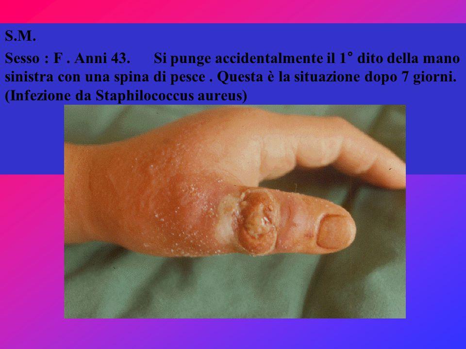 S.M. Sesso : F. Anni 43. Si punge accidentalmente il 1° dito della mano sinistra con una spina di pesce. Questa è la situazione dopo 7 giorni. (Infezi