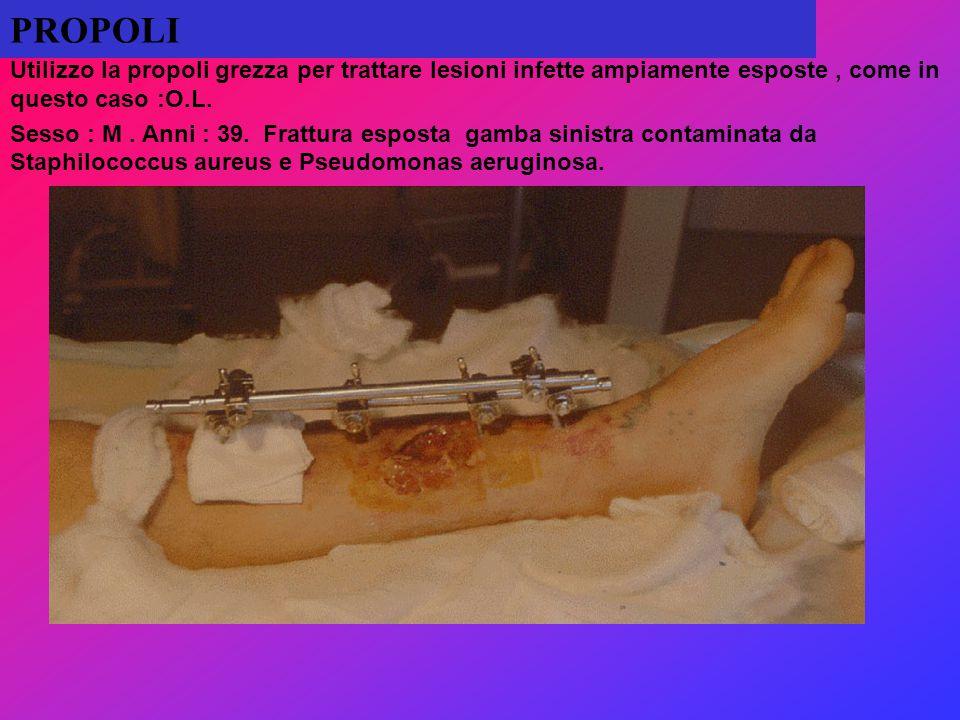 PROPOLI Utilizzo la propoli grezza per trattare lesioni infette ampiamente esposte, come in questo caso :O.L. Sesso : M. Anni : 39. Frattura esposta g