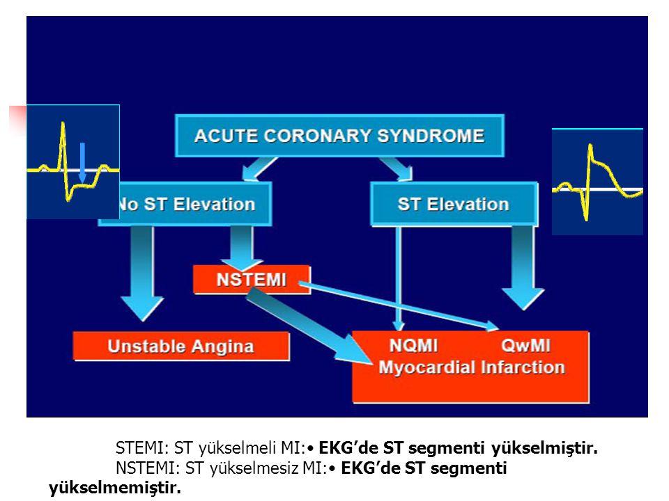 STEMI: ST yükselmeli MI: EKG'de ST segmenti yükselmiştir.