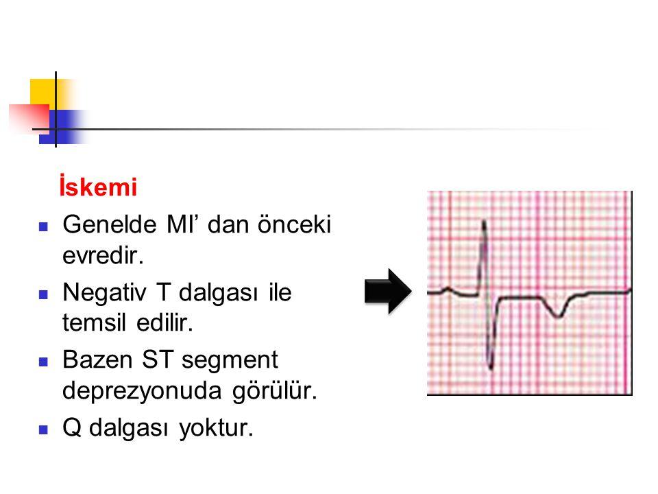 İskemi Genelde MI' dan önceki evredir.Negativ T dalgası ile temsil edilir.