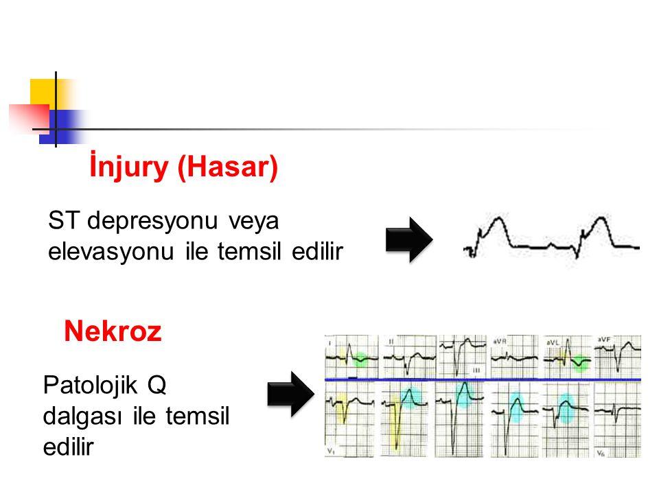 ST depresyonu veya elevasyonu ile temsil edilir İnjury (Hasar) Nekroz Patolojik Q dalgası ile temsil edilir