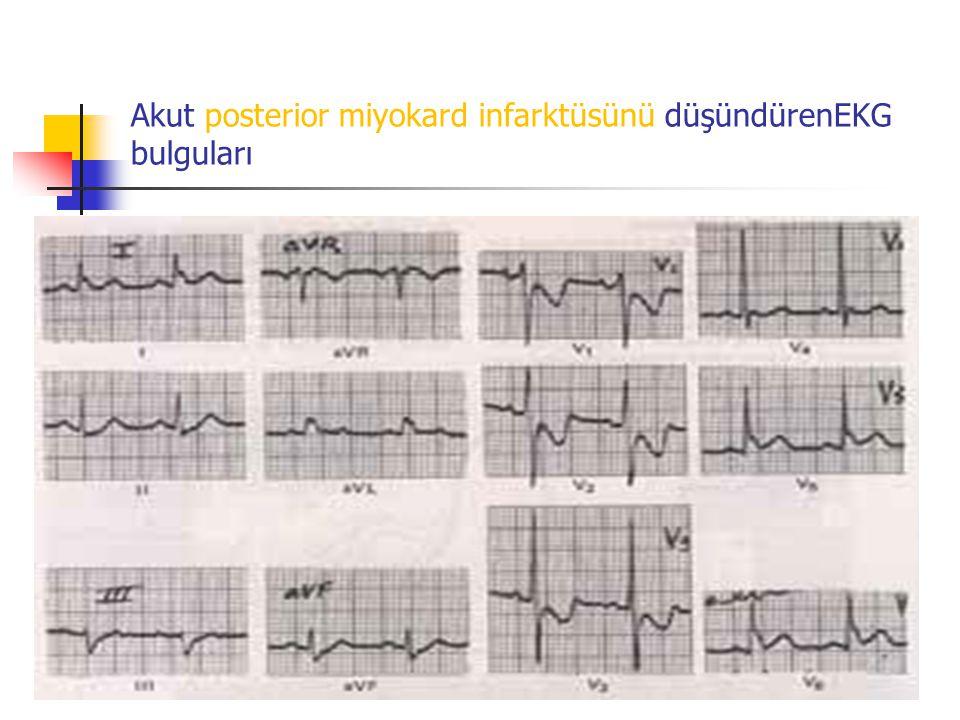 Akut posterior miyokard infarktüsünü düşündürenEKG bulguları
